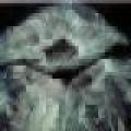 Touca plástica estéril